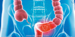 Bowel cancer is easy to cure