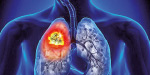 Proton therapy for lung cancer!