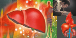 Can Avoid a liver transplant?