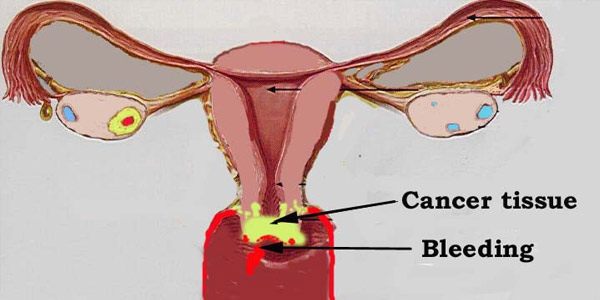 Siddha system of cervical cancer in women in the 'anti-virus' drug detection and received Government approval of the Drug Control   Authority of curiya Bharat Siddha Hospital, Dr. S. alopati. S.. Manikandan. He also says about it: