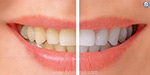 Some tips for whitening the yellow teeth