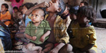 India tops in Malnourished: UN Report