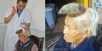 Meet the 87-year-old woman who has a five inch HORN growing out of her head