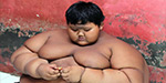 World fattest boy who weighs 192 kg at the age of 10
