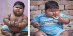10 month old girl baby has 20 kg weight