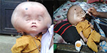 Two year old's skull is the size of a football because of excess fluid on his brain