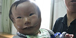 The heart-wrenching story of China's 'mask boy': Child appears to have two faces due to rare birth defect