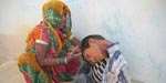 12-year-old Indian boy whose head hangs at a 180-degree angle due to a rare condition